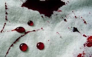 Как и чем отстирать кровь дома: ТОП способы от старых и свежих пятен